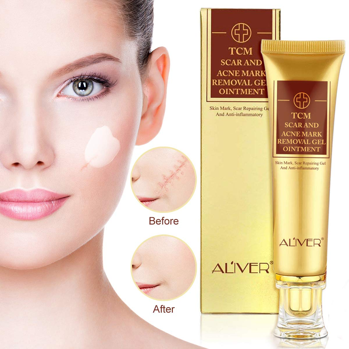 Scar Removal Cream-Advanced   Lotion For Scars
